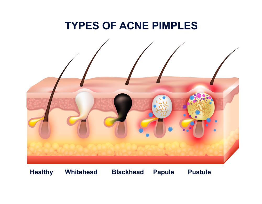 acne: development and stages - lotus flower pcos zit diagram